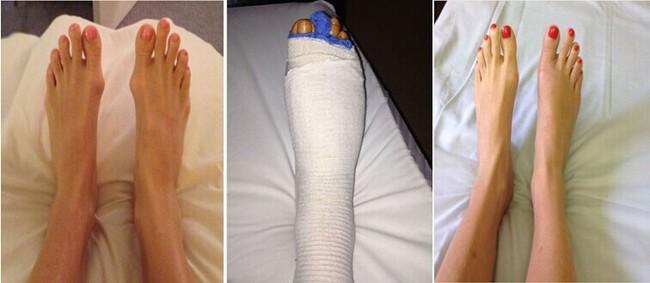 Để có vẻ ngoài hoàn hảo như hiện tại, Meghan Markle từng phẫu thuật 1 vị trí vô cùng đau đớn và nguy hiểm - Ảnh 5.