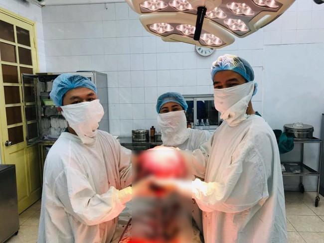 Bác sĩ kinh hoàng mổ cho bệnh nhân nhân có khối u tử cung to nhất từ trước đến nay - Ảnh 1.