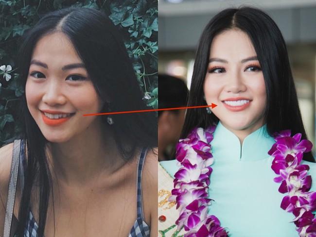 Thừa nhận tiêm thẩm mỹ, nhan sắc của Phương Khánh đã thay đổi thế nào để trở thành Tân Hoa hậu Miss Earth 2018 - Ảnh 10.