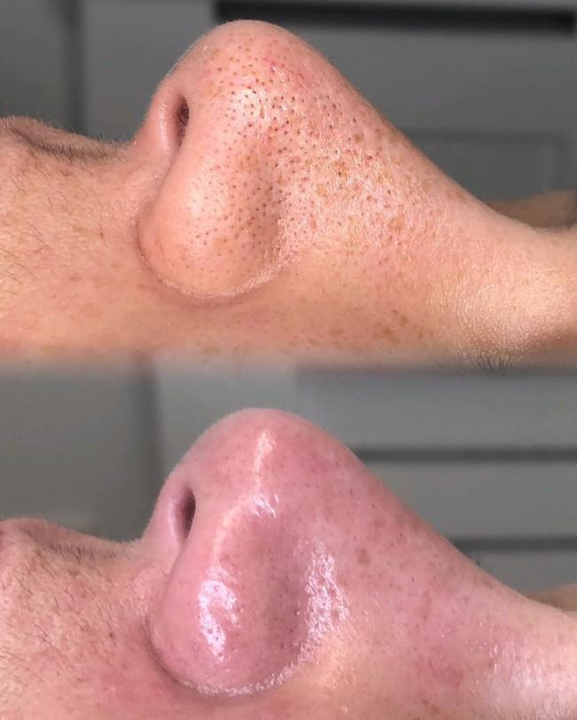 10 bí kíp giúp da bạn luôn rạng rỡ dù đông hay hè, bí quyết thứ 6 sẽ khiến chị em giật mình - Ảnh 6.