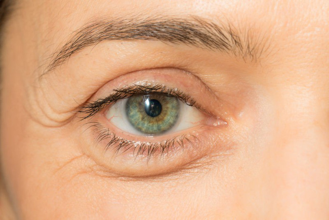 5 dấu hiệu trên khuôn mặt tiết lộ sự thiếu hụt các chất dinh dưỡng mà bạn chỉ cần nhìn vào gương là thấy - Ảnh 2.