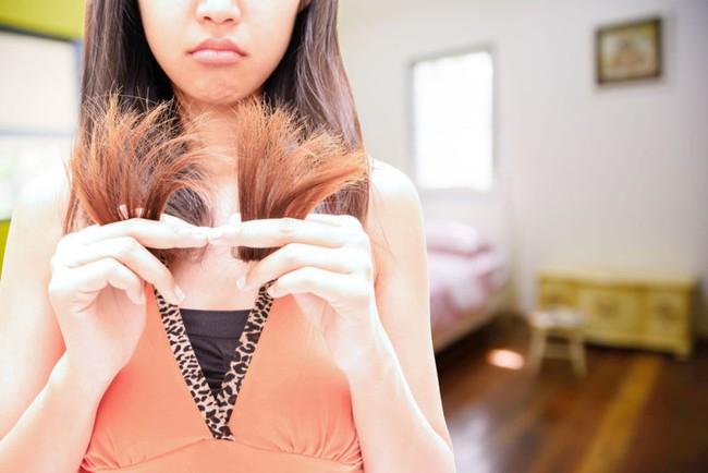 5 dấu hiệu trên khuôn mặt tiết lộ sự thiếu hụt các chất dinh dưỡng mà bạn chỉ cần nhìn vào gương là thấy - Ảnh 3.