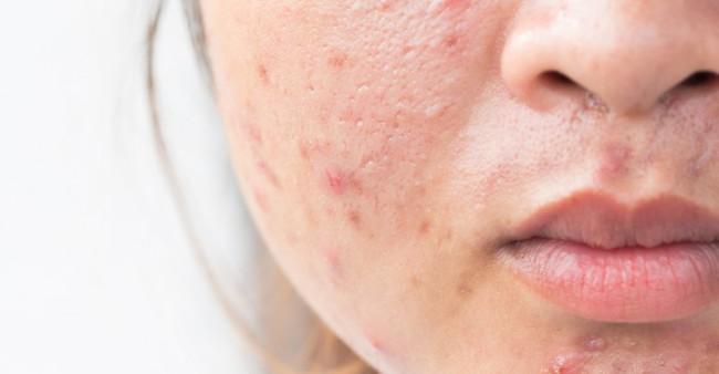 Theo chuyên gia người Hàn, da khô bị mụn hoành hành thì chỉ cần dùng đúng 4 sản phẩm này là sạch mụn và căng mướt - Ảnh 2.