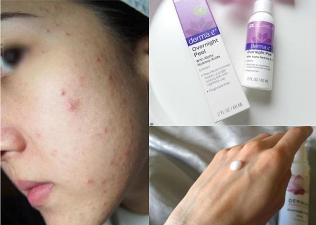 Có nhất thiết phải dưỡng đủ 10 bước chăm sóc da của Hàn, câu trả lời sẽ có ngay trong bài viết này! - Ảnh 5.