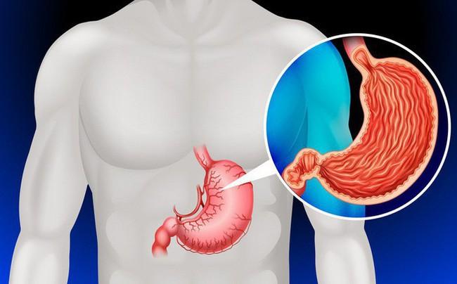 Đây là 6 căn bệnh ung thư mà người thừa cân có nguy cơ mắc phải rất cao - Ảnh 4.