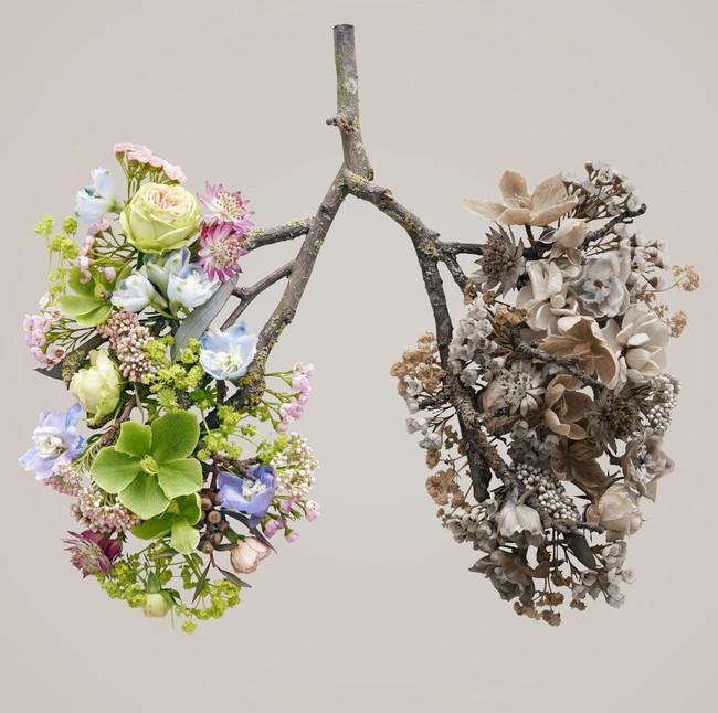 9 triệu chứng ung thư phổi mà tất cả phụ nữ nên để mắt tới - Ảnh 1.