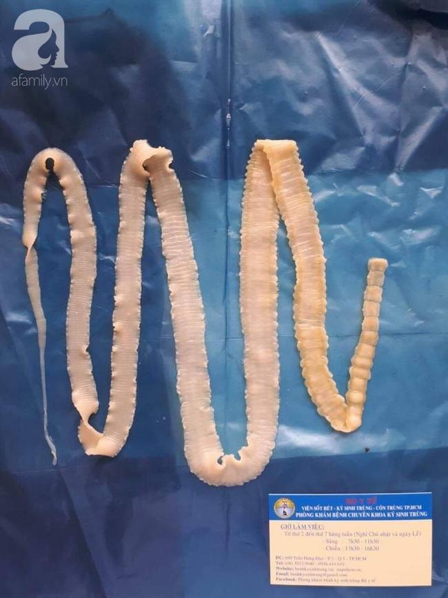 Nguy hiểm: Phát hiện ổ bệnh sán dây lợn, ít nhất 108 người mắc ở Bình Phước nghi do ăn thịt sống  - Ảnh 3.
