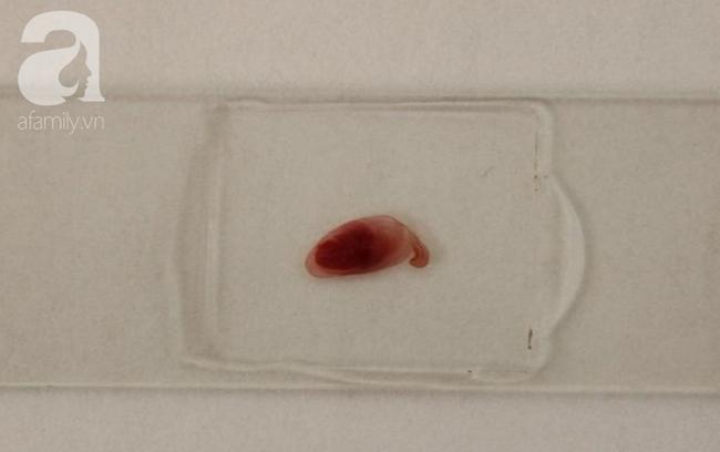 Phát hiện ổ sán dây lợn khiến ít nhất 108 người nhiễm bệnh: Nhiễm sán dây lợn nguy hiểm thế nào?  - Ảnh 4.