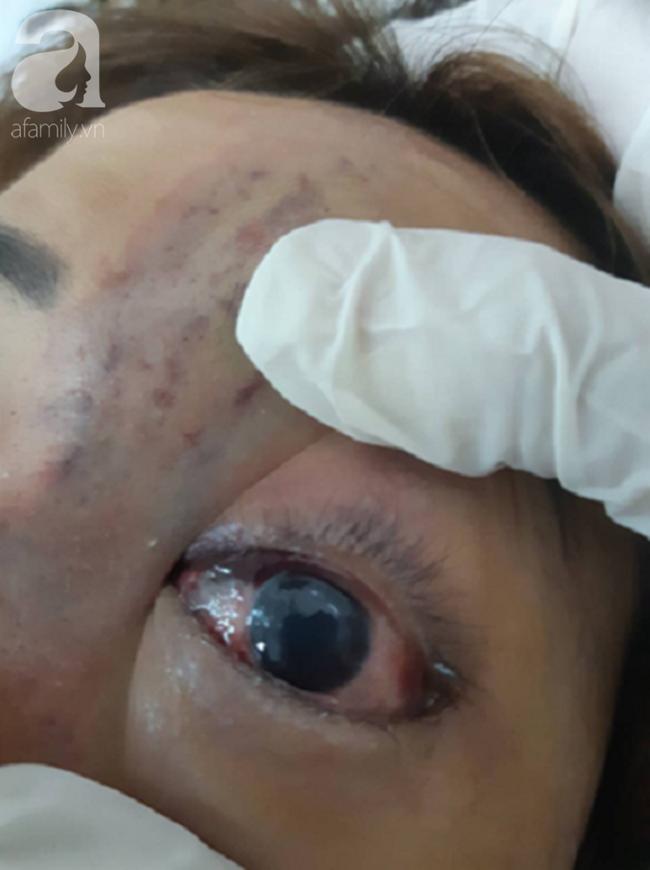 TP.HCM: Nữ sinh viên 19 tuổi biến dạng mặt, suýt mù mắt vì tiêm nâng mũi tại thẩm mỹ viện chung cư - Ảnh 5.
