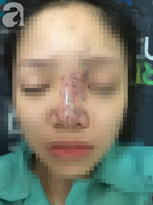 TP.HCM: Nữ sinh viên 19 tuổi biến dạng mặt, suýt mù mắt vì tiêm nâng mũi tại thẩm mỹ viện chung cư - Ảnh 4.