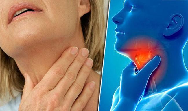 BS cảnh báo 5 thói quen bạn nên thay đổi ngay vì có thể nuôi lớn tế bào ung thư vòm họng - Ảnh 1.