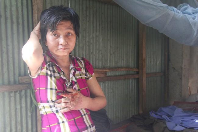 Rớt nước mắt cảnh cha già có đến 6 người con nhưng cuối đời phải chăm con gái bệnh tật không tiền chữa - Ảnh 15.