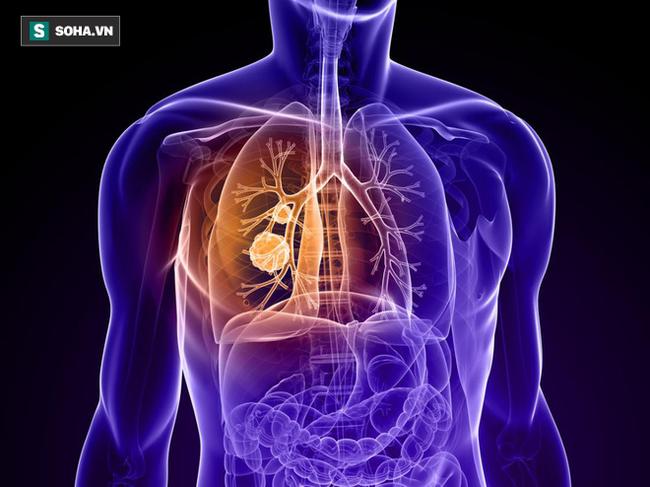 Ung thư cũng biết chọn mặt gửi mầm bệnh với 8 nhóm người: Ai cũng nên xem để phòng tránh - Ảnh 1.