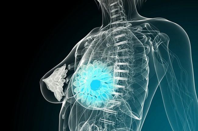 Ung thư cũng biết chọn mặt gửi mầm bệnh với 8 nhóm người: Ai cũng nên xem để phòng tránh - Ảnh 2.