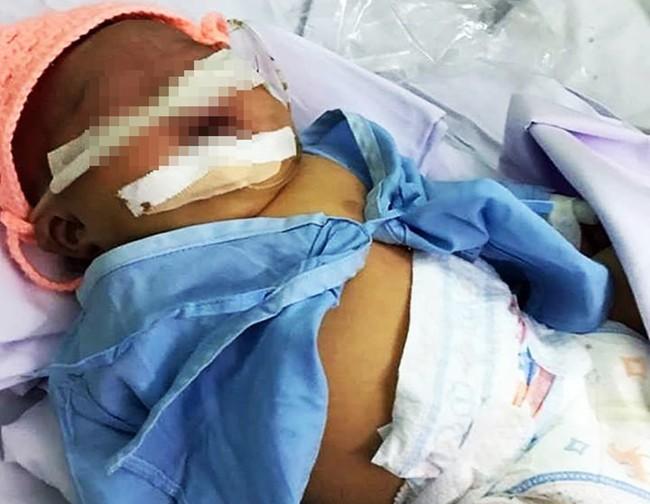Bé gái nặng 4kg nhưng cho sinh thường ở Bình Thuận bị tổn thương thần kinh cánh tay và hôn mê - Ảnh 2.