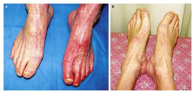 Chân bị bầm tím có thể do những bệnh đáng sợ gây ra vì vậy bạn cần thận trọng - Ảnh 4.