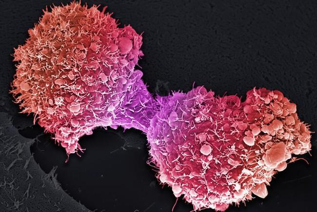 Ung thư tuyến tụy đang tìm đến bạn từ những dấu hiệu sớm này nhưng ít ai nhận ra - Ảnh 2.