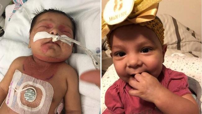 Con gái mới 14 ngày tuổi đã bị mắc bệnh ung thư, mẹ tự trách mình vì làm điều không tốt khi mang thai - Ảnh 1.