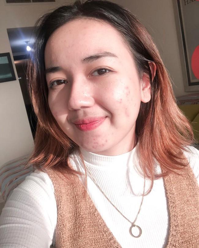 Làn da đầy mụn mẩn đỏ của cô nàng này đã thay đổi đến 90% sau 5 tháng áp dụng chu trình dưỡng da kiểu Hàn - Ảnh 1.