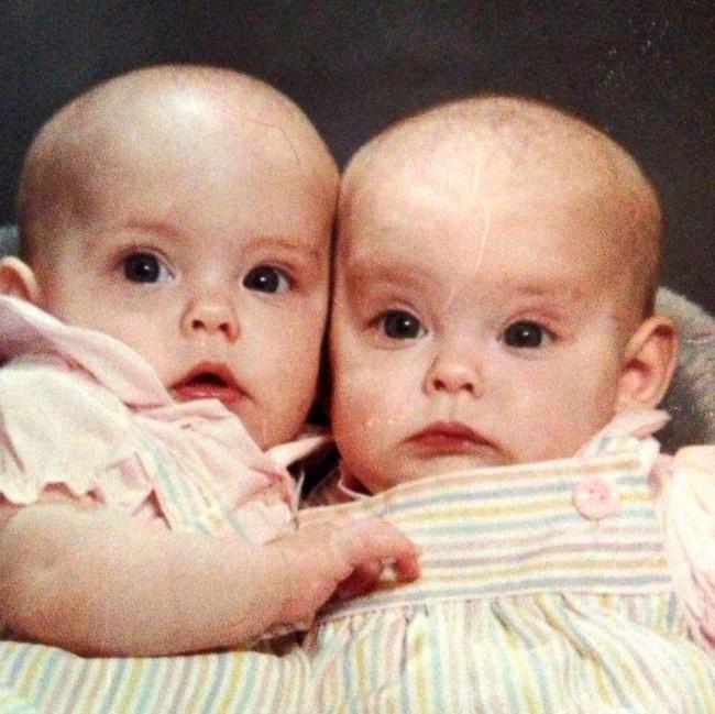 Hai chị em sinh đôi mang bầu rồi sinh con cùng 1 ngày tại cùng 1 bệnh viện, nhìn khuôn mặt 2 đứa trẻ mọi người lại càng ngạc nhiên - Ảnh 1.