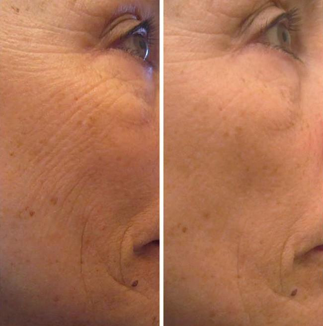 11 loại mặt nạ tự nhiên giúp chị em trẻ ra cả chục tuổi, lại có tác dụng chăm sóc toàn diện cho làn da - Ảnh 5.