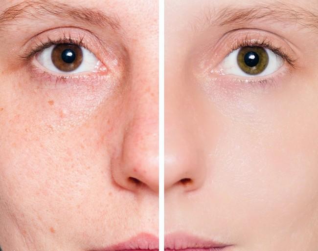 8 lỗi làm đẹp sai trầm trọng, không chỉ gây tác hại cho làn da mà còn khiến chị em bị lão hoá nhanh hơn - Ảnh 8.