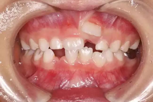 Cứ 10 trẻ thì có 5 trẻ bị hàm răng đôi do thói quen chiều con khi ăn của cha mẹ - Ảnh 3.