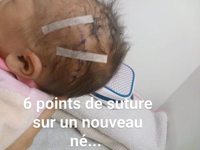 Bác sĩ rạch trúng đầu em bé trong ca sinh mổ, không xin lỗi còn nói rằng không nghiêm trọng - Ảnh 1.