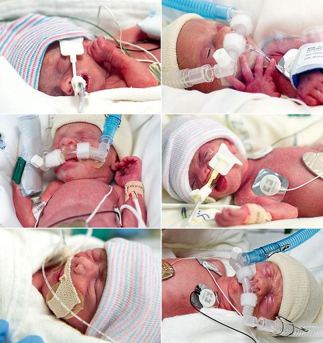 Hy hữu ca sinh mổ với đội ngũ y bác sĩ lên tới 35 người để giúp những… 6 em bé chào đời cùng lúc - Ảnh 4.