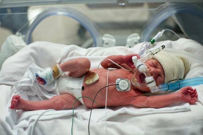 Hy hữu ca sinh mổ với đội ngũ y bác sĩ lên tới 35 người để giúp những… 6 em bé chào đời cùng lúc - Ảnh 5.