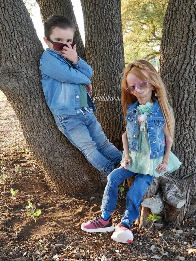 Mắc phải căn bệnh cực hiếm, cô bé 11 tuổi có gương mặt bà lão trở thành hiện tượng mạng xã hội thu hút đến 13 triệu người theo dõi - Ảnh 4.