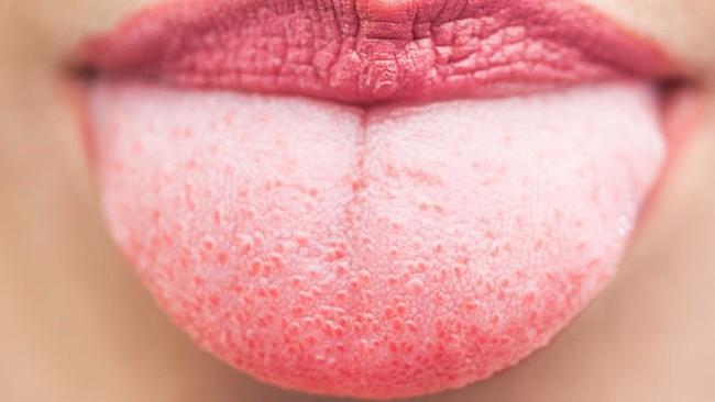 """Người phụ nữ có lưỡi đen sì vì """"mọc lông"""": Chuyên gia cảnh báo thói quen mà nhiều người không để ý cũng là nguyên nhân gây bệnh - Ảnh 4."""