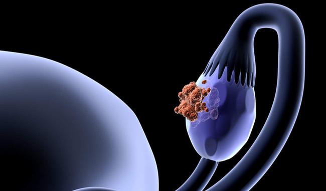 Vẫn sống khỏe dù bị ung thư buồng trứng, đây là điều mà người phụ nữ 30 tuổi không may mắn này muốn chị em hãy ghi nhớ - Ảnh 2.