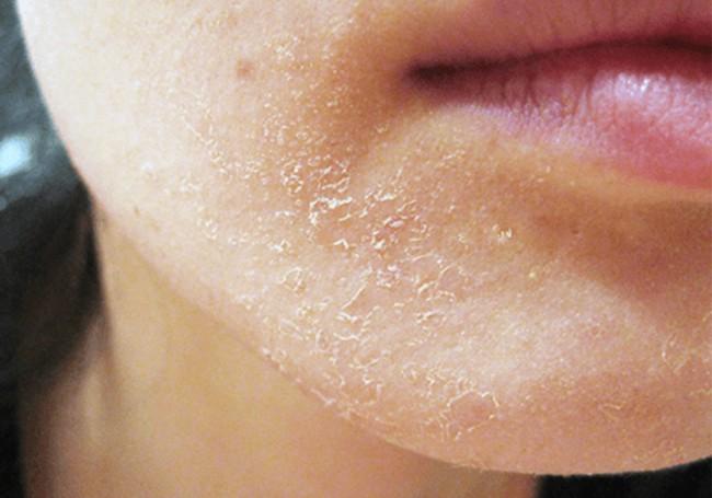 6 triệu chứng nhận biết làn da của bạn đang gặp vấn đề, cần quan tâm chăm sóc kỹ càng hơn - Ảnh 4.