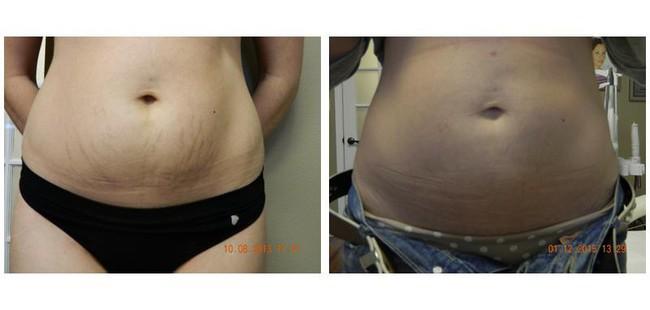 Đây là phương pháp giúp trị rạn da và thấy được hiệu quả ngay tức khắc  - Ảnh 3.