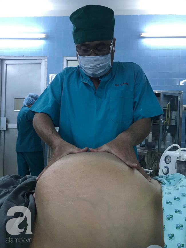 Từ 1 khối u nhỏ bị bỏ quên trong tử cung, 4 năm sau, người phụ nữ khổ sở vì khối u lớn khủng khiếp - Ảnh 1.
