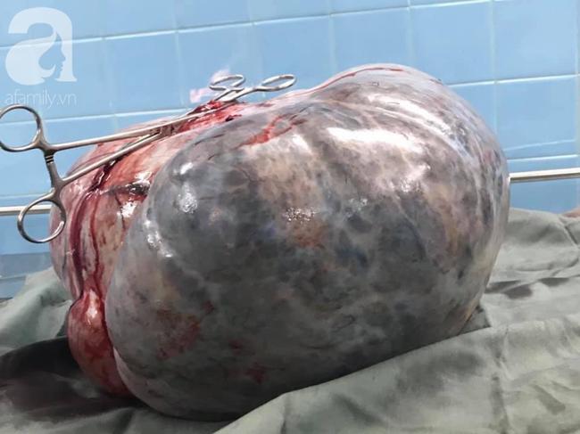 Từ 1 khối u nhỏ bị bỏ quên trong tử cung, 4 năm sau, người phụ nữ khổ sở vì khối u lớn khủng khiếp - Ảnh 5.