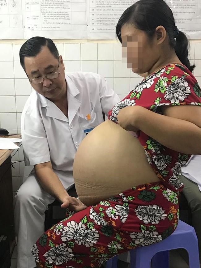 Từ 1 khối u nhỏ bị bỏ quên trong tử cung, 4 năm sau, người phụ nữ khổ sở vì khối u lớn khủng khiếp - Ảnh 3.