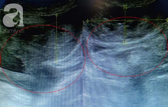 Thấy đau bụng trên 2 ngày và ra huyết màu nâu đen, chị em coi chừng bị căn bệnh gây vỡ tử cung, vô sinh - Ảnh 1.