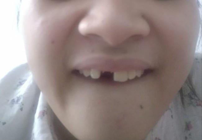 Một phút lỡ lầm cả đời ôm hận: Luộc chân gà ăn đêm, cô gái bay luôn chiếc răng cửa - Ảnh 5.