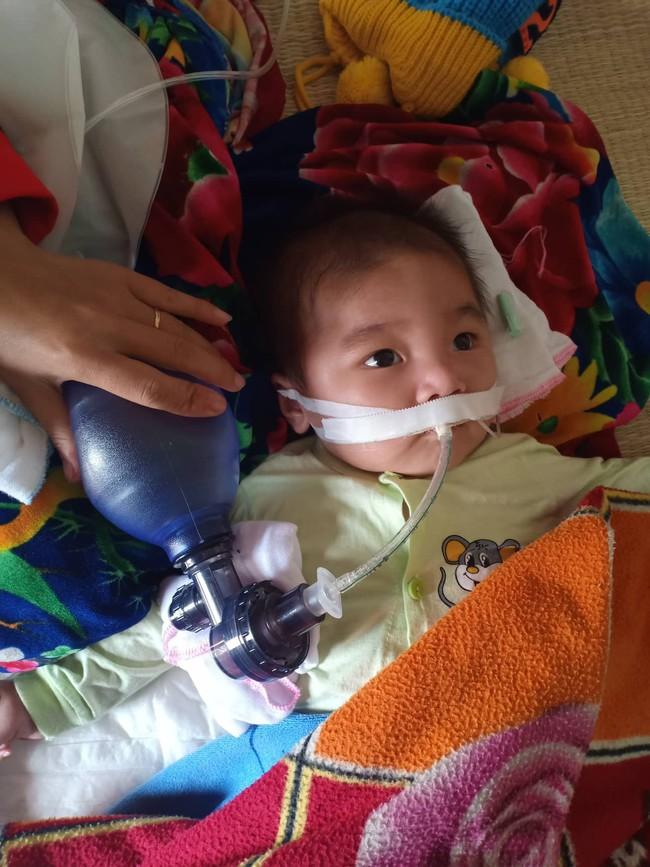 """Ánh mắt cầu cứu của bé trai 8 tháng sống phụ thuộc vào máy thở: """"Nếu ngừng bóp bình oxy con tôi sẽ ngưng thở"""" - Ảnh 1."""