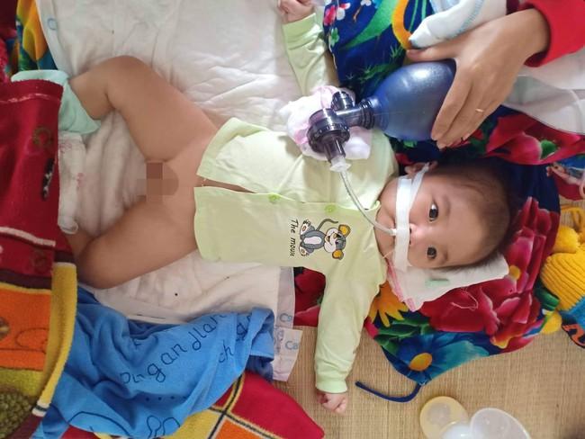 """Ánh mắt cầu cứu của bé trai 8 tháng sống phụ thuộc vào máy thở: """"Nếu ngừng bóp bình oxy con tôi sẽ ngưng thở"""" - Ảnh 2."""