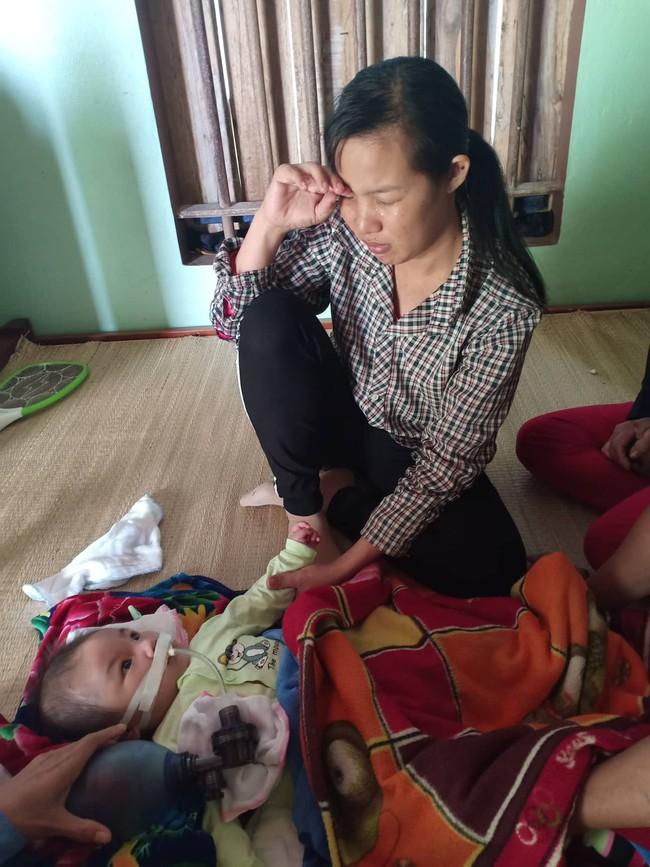 """Ánh mắt cầu cứu của bé trai 8 tháng sống phụ thuộc vào máy thở: """"Nếu ngừng bóp bình oxy con tôi sẽ ngưng thở"""" - Ảnh 8."""