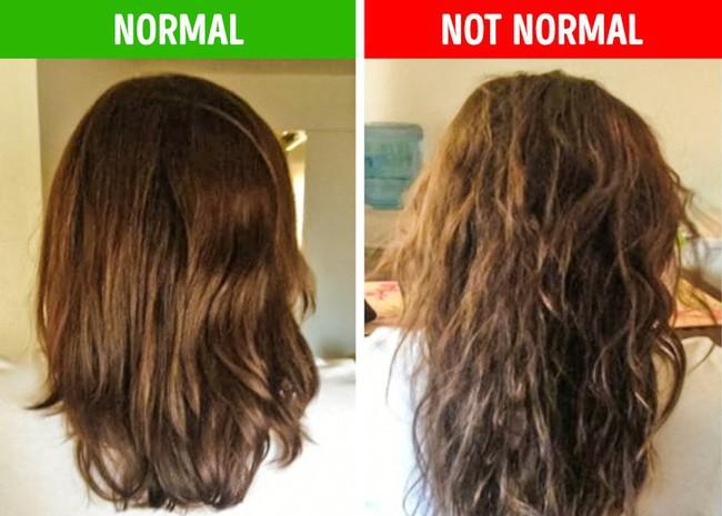 Nếu gặp các biểu hiện này ở tóc, hãy gặp bác sĩ vì rất có thể có điều gì đó không ổn trong cơ thể - Ảnh 9.
