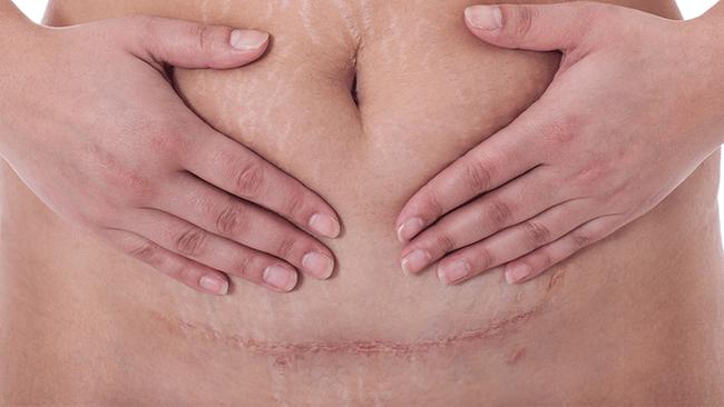 Đây chính là lộ trình giúp các mẹ sau sinh mổ phục hồi thật tốt và hiệu quả - Ảnh 4.