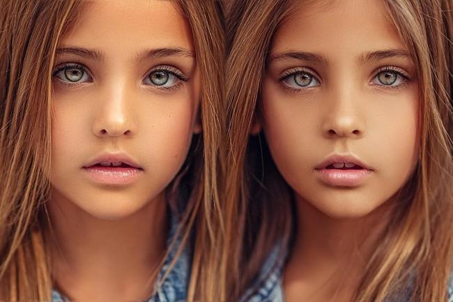 2 cô bé được gọi là cặp song sinh đẹp nhất thế giới nay đã lớn phổng phao, có một điều mãi không thay đổi - Ảnh 6.
