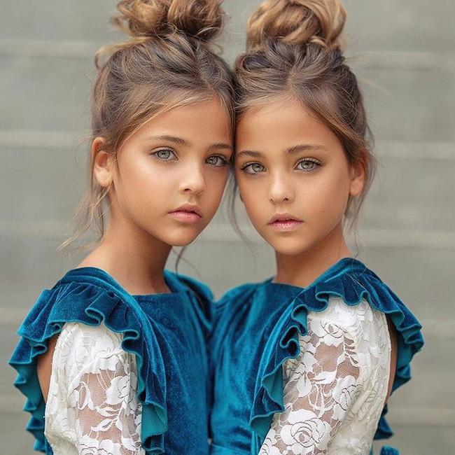 2 cô bé được gọi là cặp song sinh đẹp nhất thế giới nay đã lớn phổng phao, có một điều mãi không thay đổi - Ảnh 5.