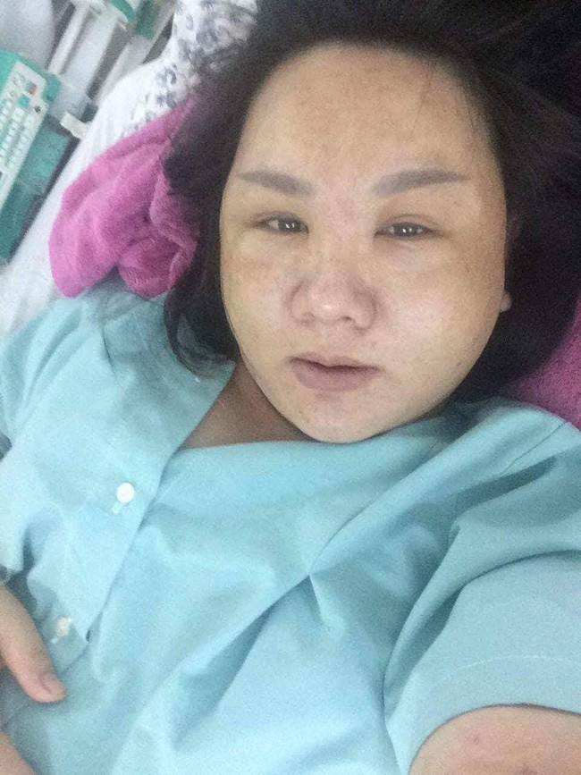 """Cô gái Việt xinh đẹp bỗng phù nề khi mang bầu, người quen không nhận ra, vào phòng đẻ bị chê """"xúc phạm người nhìn"""" - Ảnh 2."""