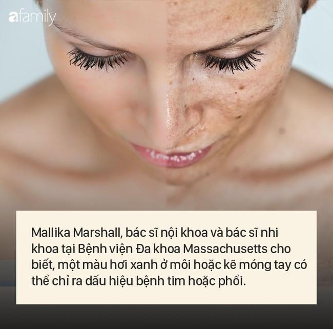 """8 dấu hiệu cảnh báo bệnh được """"khắc rất rõ"""" trên khuôn mặt của bạn - Ảnh 6."""