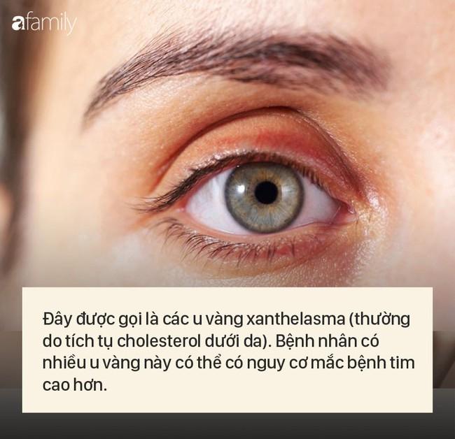 """8 dấu hiệu cảnh báo bệnh được """"khắc rất rõ"""" trên khuôn mặt của bạn - Ảnh 3."""